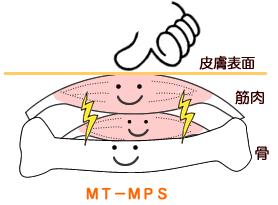 mt-mpsの場合